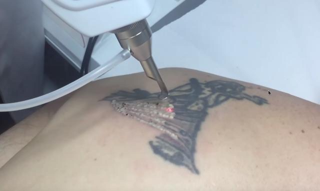 eliminacion_tatuajes_almeria_granada