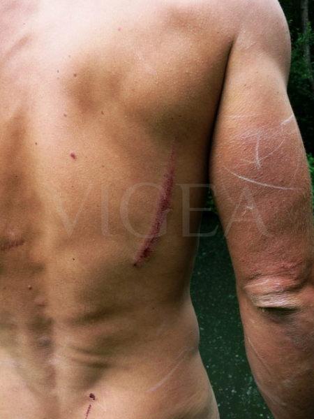 medicina estetica cicatrices almeria granada