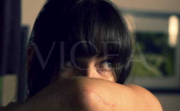 tratamientos médicos para cicatrices y estrias