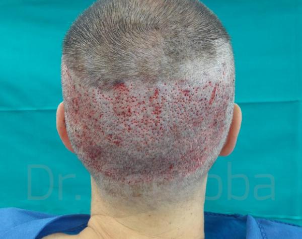tecnica fue trasplante pelo almeria granada