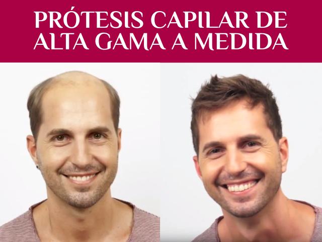 protesis capilar indetectable granada almeria peluca